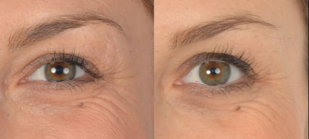 Federica - crows feet reduced with Oralift