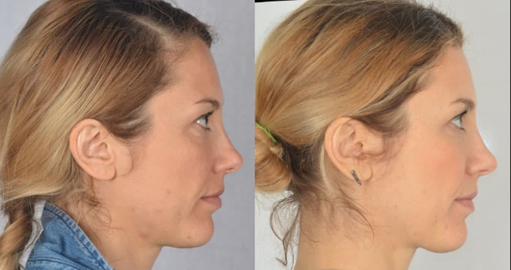 Federica - profile improvement and firmer jawline with Oralift