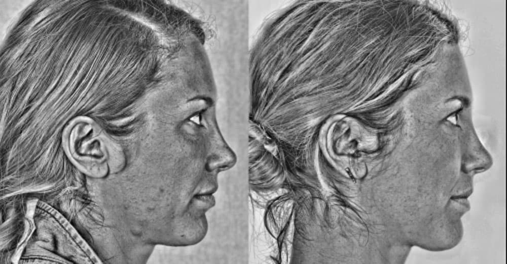 Federica - improvement in the skin with the black and white filter