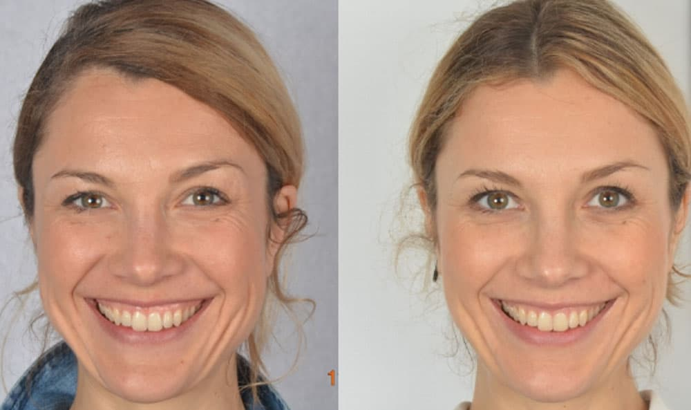 Federica - Gingival display reduced in the smile after 8 months of Oralift treatment