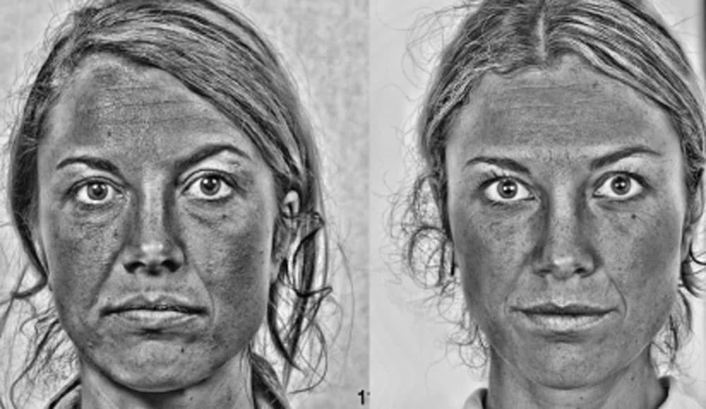 Federica - Black and white filter helps to see the changes before and after treatment