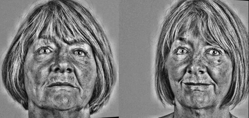 Wynne - Black and white filter more clearly shows the improvements after 6 months of Dental facelift