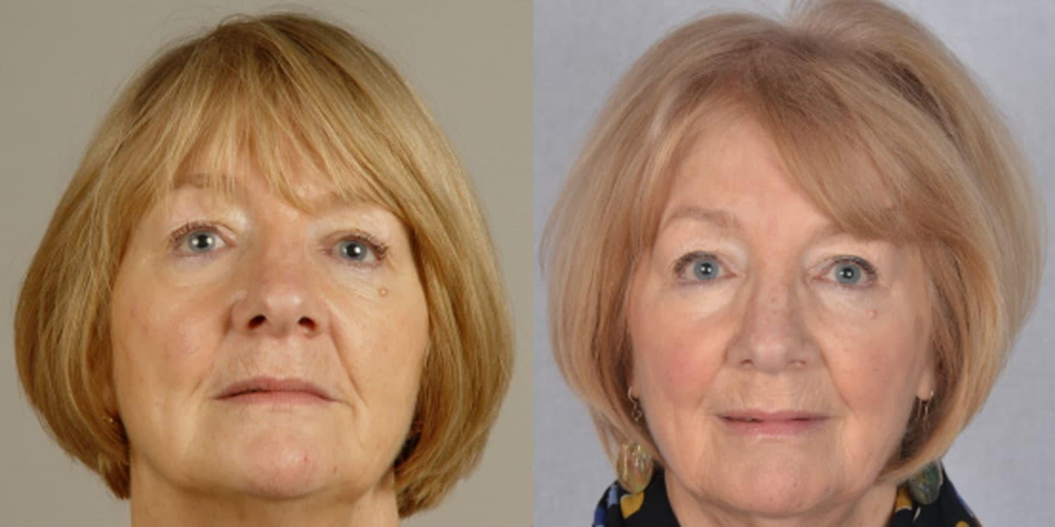 Wynne - 6 years after Dental facelift