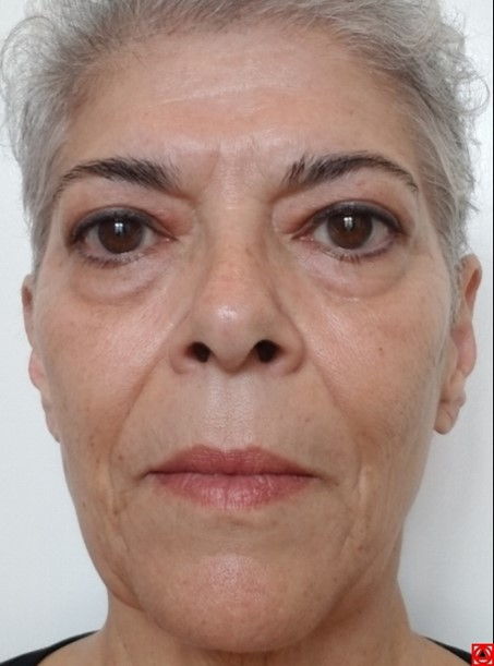 Natural facelift is already starting to work in 2 months