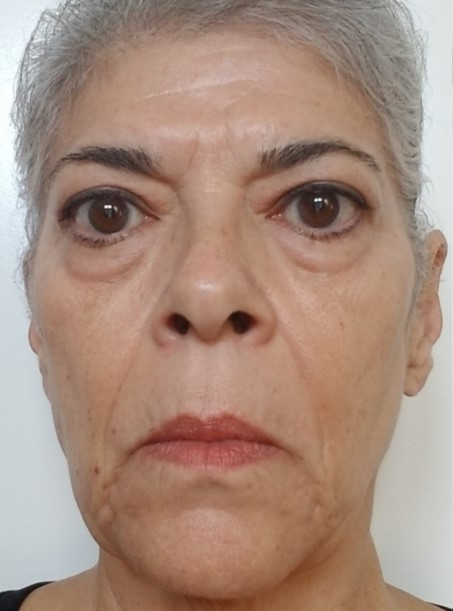 Before the start of the facial rejuvenation