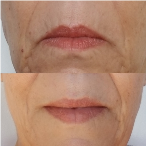 How to get fuller lips naturally?