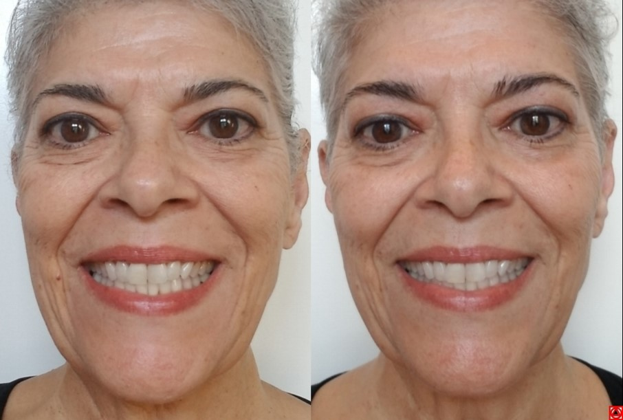 Natural smile makeover at a fraction of the cost