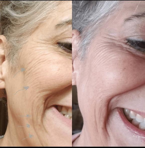 Best treatment for cheeks wrinkles